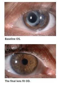 Baseline Eyes